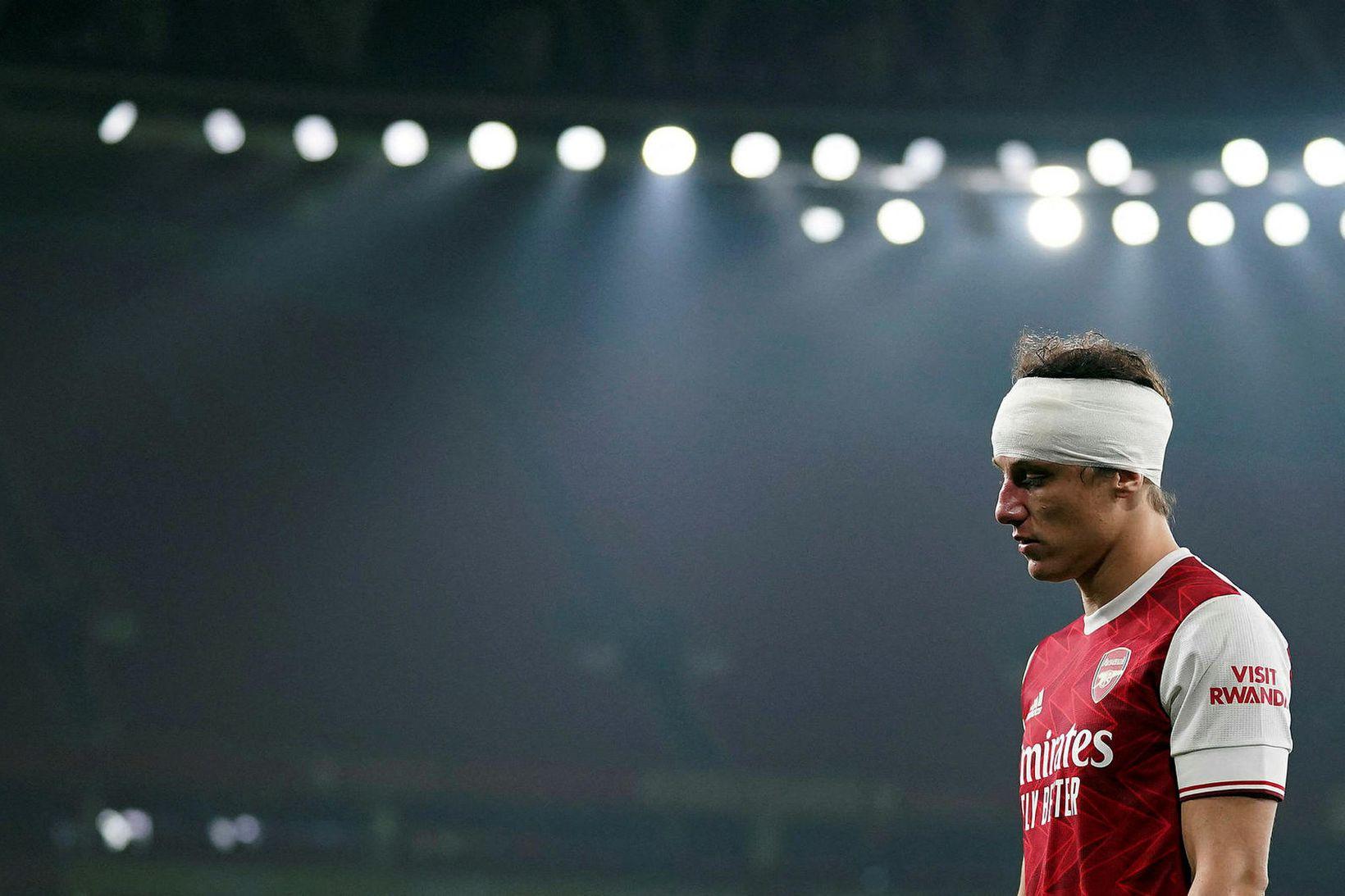 David Luiz gekk til liðs við Arsenal frá Chelsea sumarið …