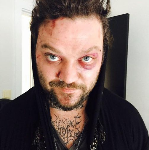 The photograph published by Bam Margera of his battered face.