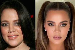 Khloé Kardashian hefur breyst mikið á síðustu árum.