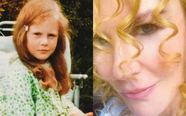 Nicole Kidman þá og nú.