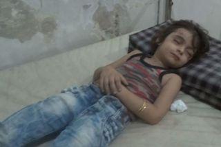 Rawan Alowsh sést hér liggja slösuð í sjúkrarúmi á spítala í Aleppo.