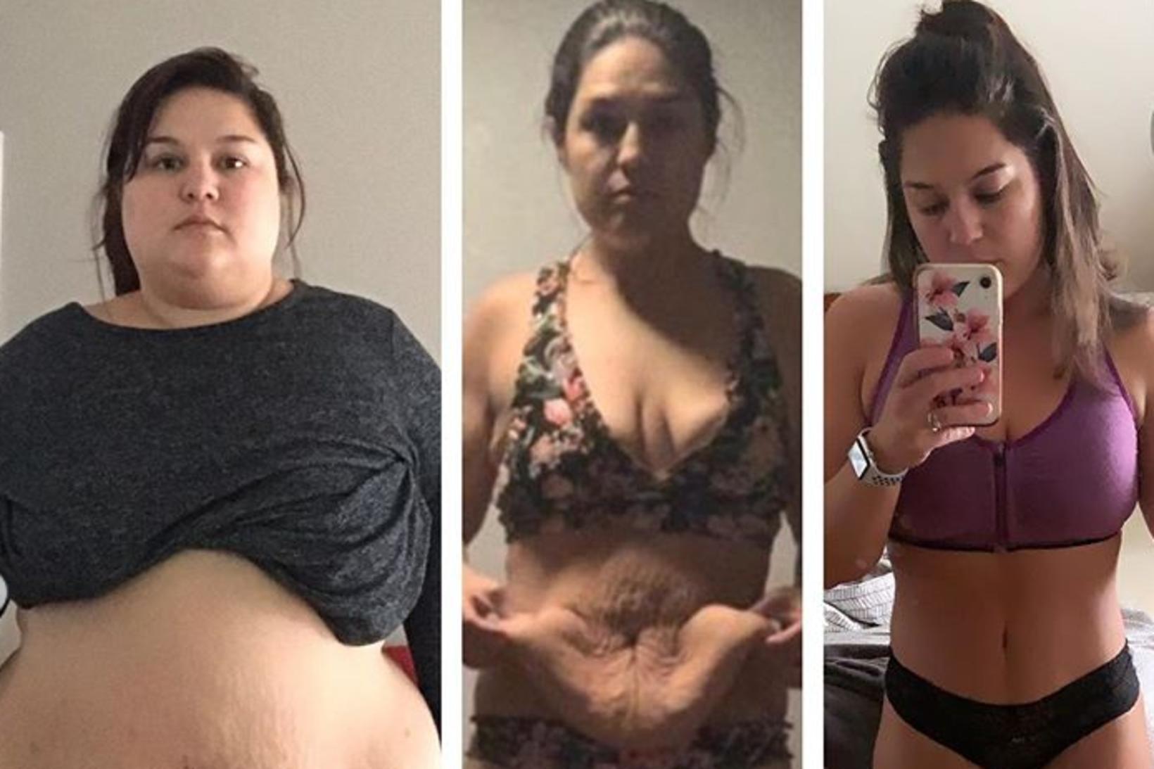 Nicole Caperilla léttist um 57 kíló.
