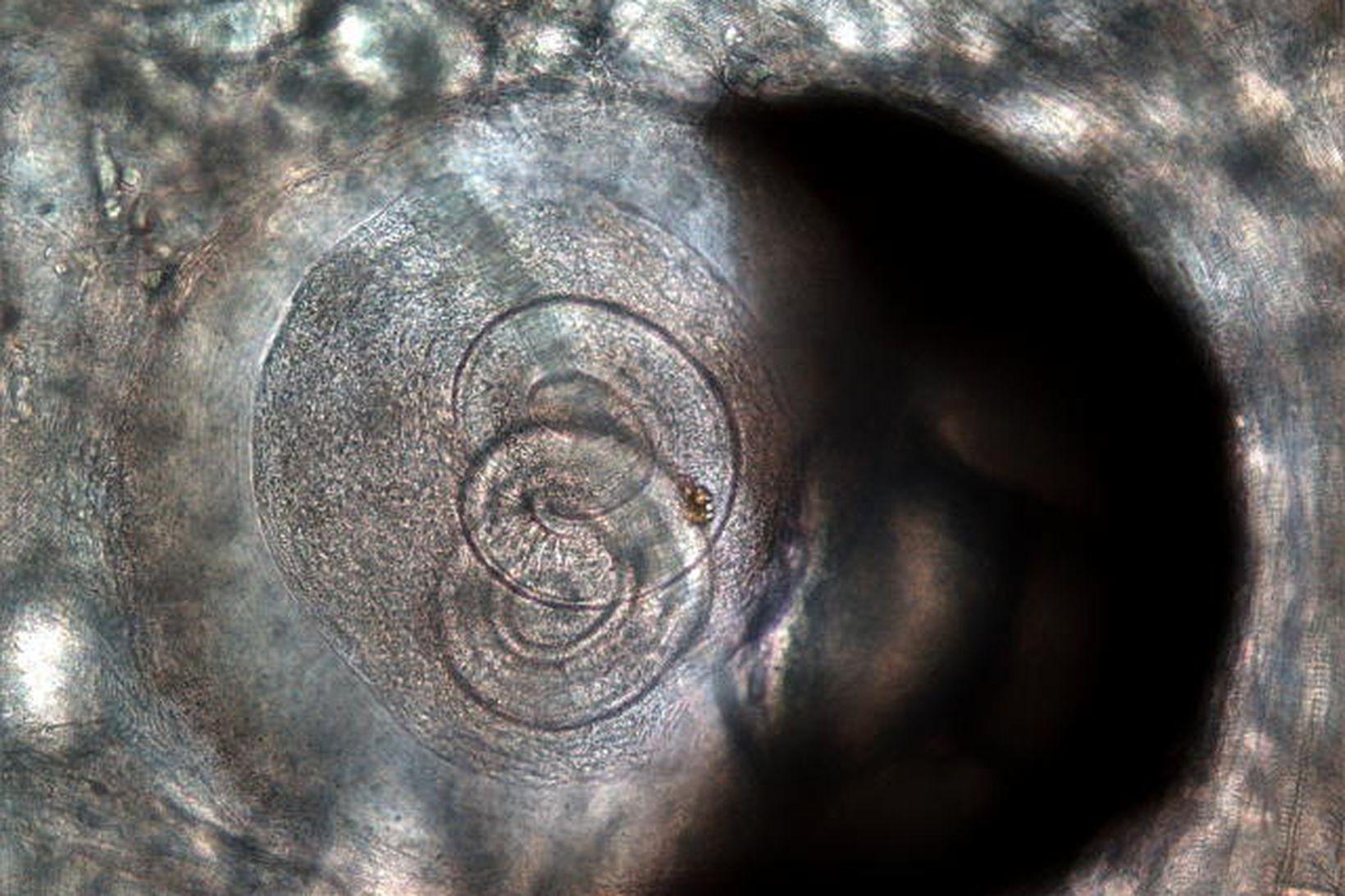 Tríkínum Trichinella þráðormur