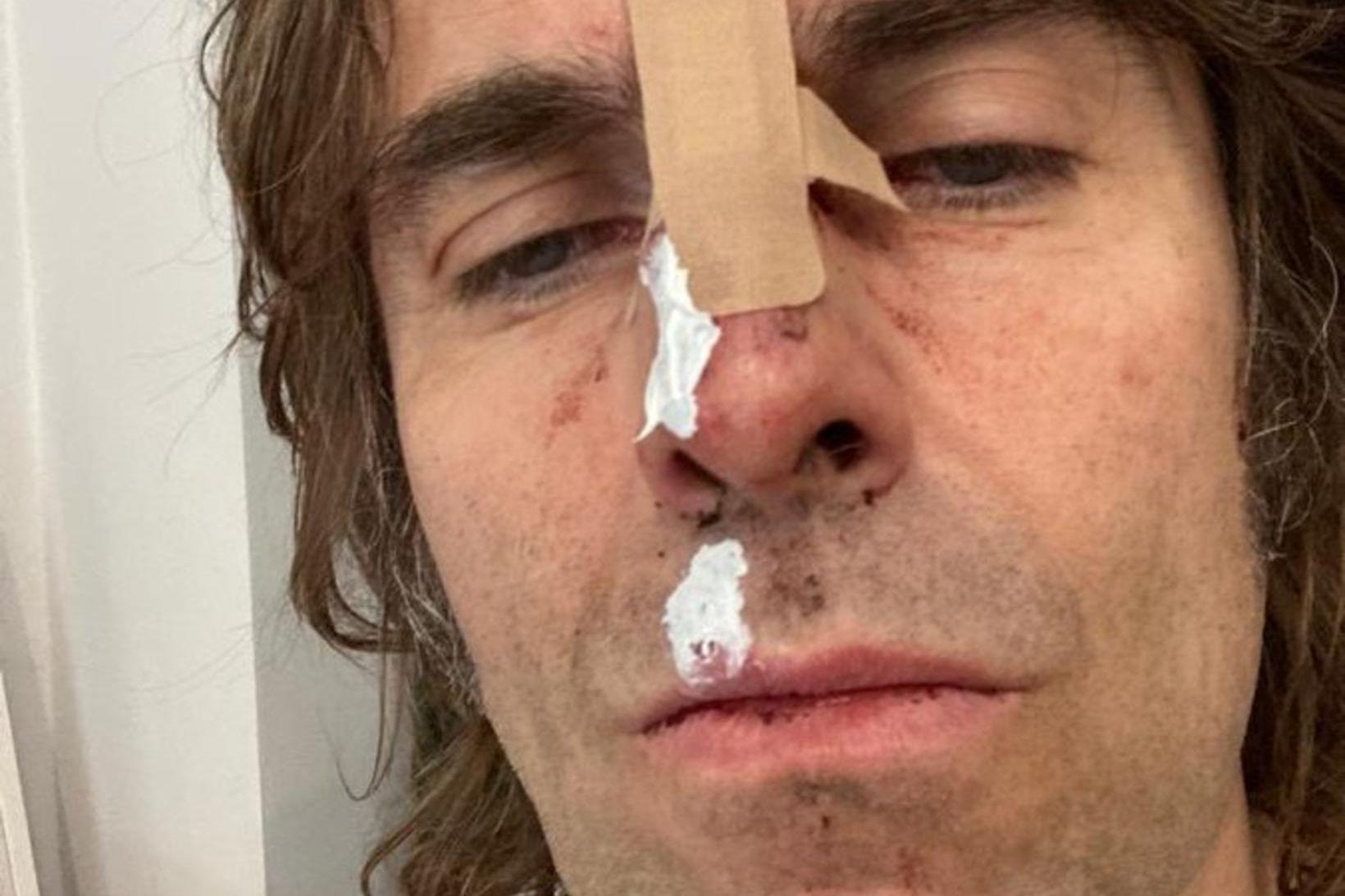 Liam Gallagher, nokkuð lemstraður eftir fallið.
