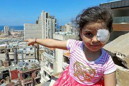 Sama al-Hamad, 6 ára gömul sýrlensk stúlka sem búsett er í Beirút og missti augað …