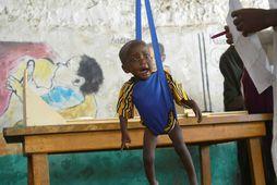 Vannært barn vigtað á heilsugæslustöð UNICEF í Jemen.