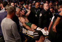 Conor McGregor á börum eftir að hann fótbrotnaði um síðustu helgi.